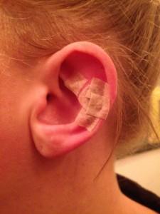 Nålene i mit øre sættes på med plaster, så de kan blive siddende